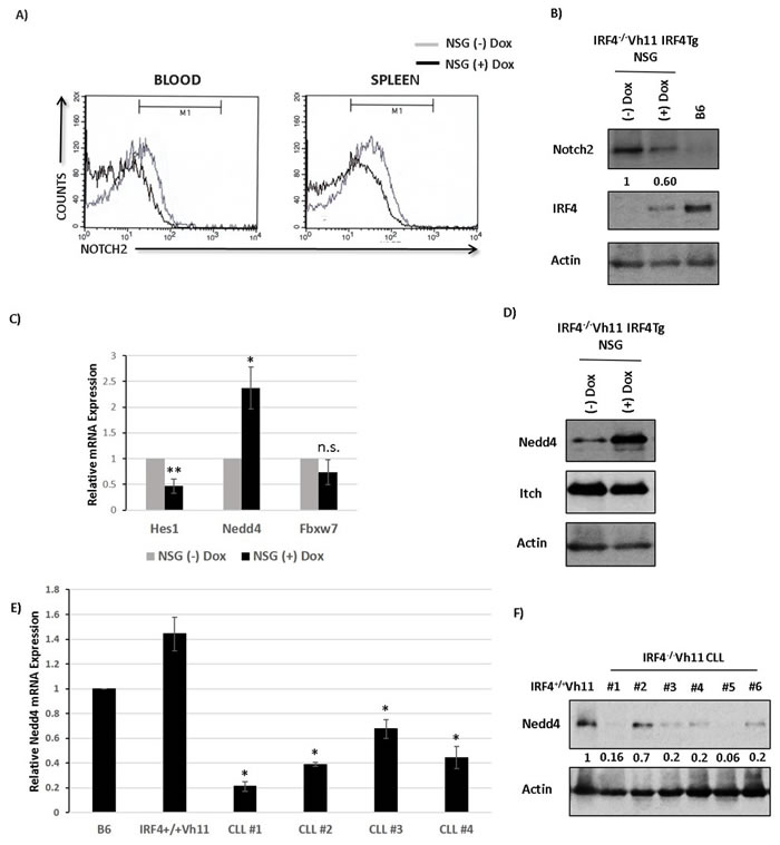 IRF4 regulates E3 ubiquitin ligase Nedd4 in CLL cells.