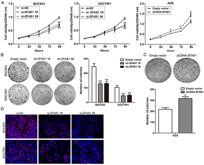 Effects of ZFAS1 on gastric cancer cell proliferation in vitro.