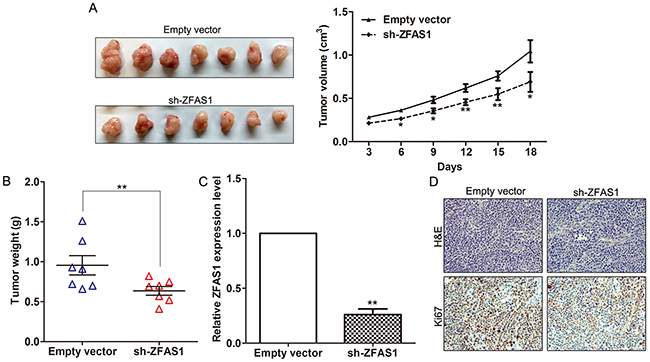 Effect of ZFAS1 on gastric cancer cells tumorigenesis in vivo.