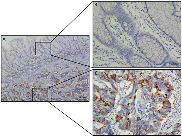 Comparative analysis of TACC3 expression in CRC and adjacent normal tissues by IHC staining.