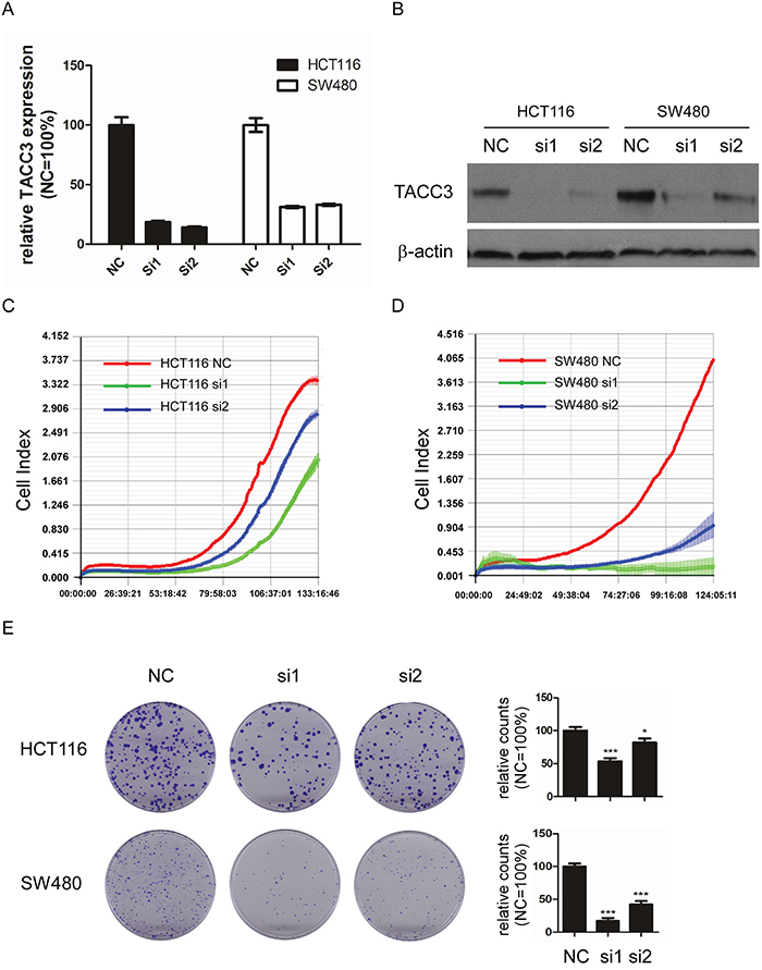Knockdown of TACC3 attenuates proliferation and colony formation capability in CRC cell lines.
