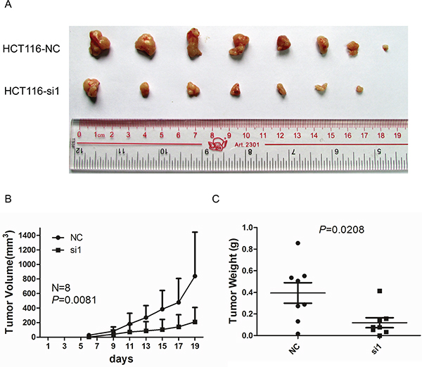 Knockdown of TACC3 inhibits tumour growth in nude mice.