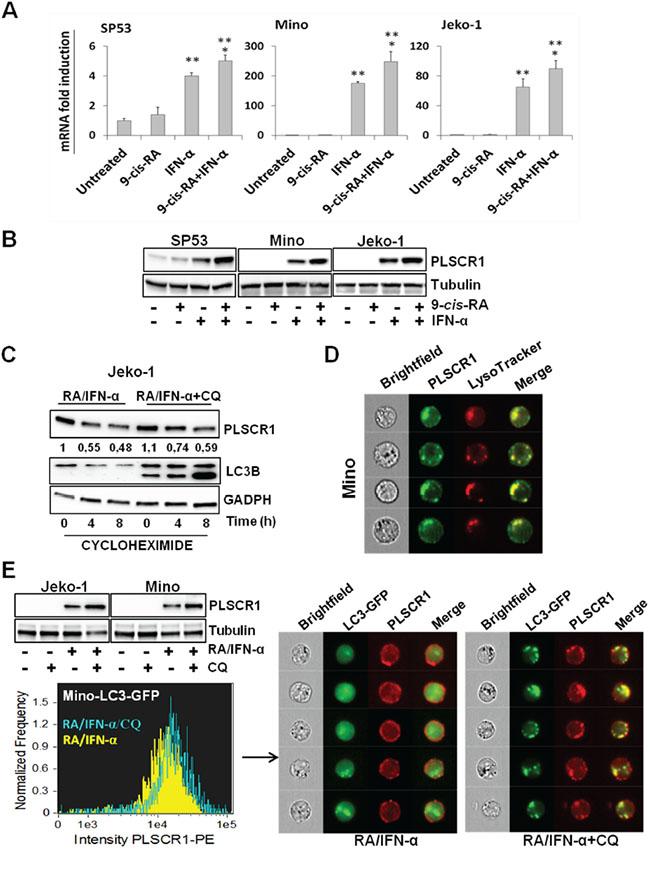 RA/IFN-α combination controls both transcription and protein degradation of PLSCR1.