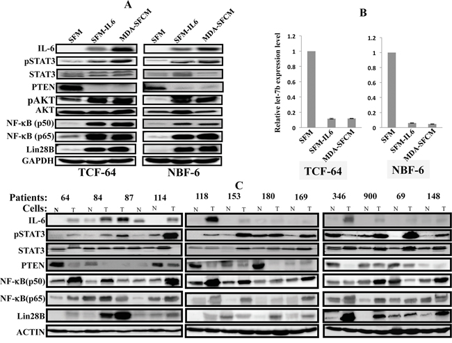 The IL-6/STAT3/NF-κB autocrine positive feedback loop is active in activated fibroblasts in vitro and in tumors.