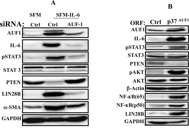 AUF1 is part of the IL-6/STAT3/NF-κB autocrine positive feedback loop.