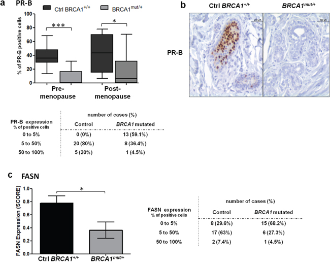 PR-B and FASN expression levels in control and BRCA1mut/+ breast tissues.