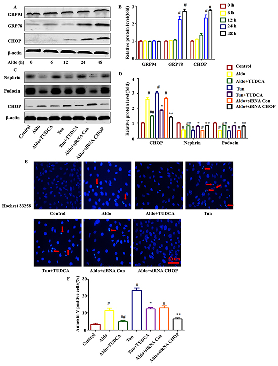 ERS is involved in Aldo-induced podocyte injury in cultured podocytes.