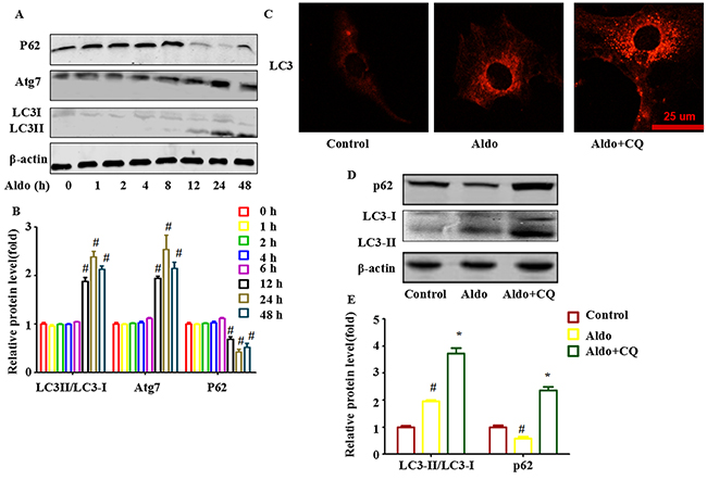 Aldo-induced autophagy flux in cultured podocytes.