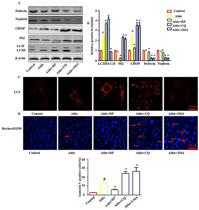 Autophagy protects against Aldo-induced ER stress and podocyte injury.