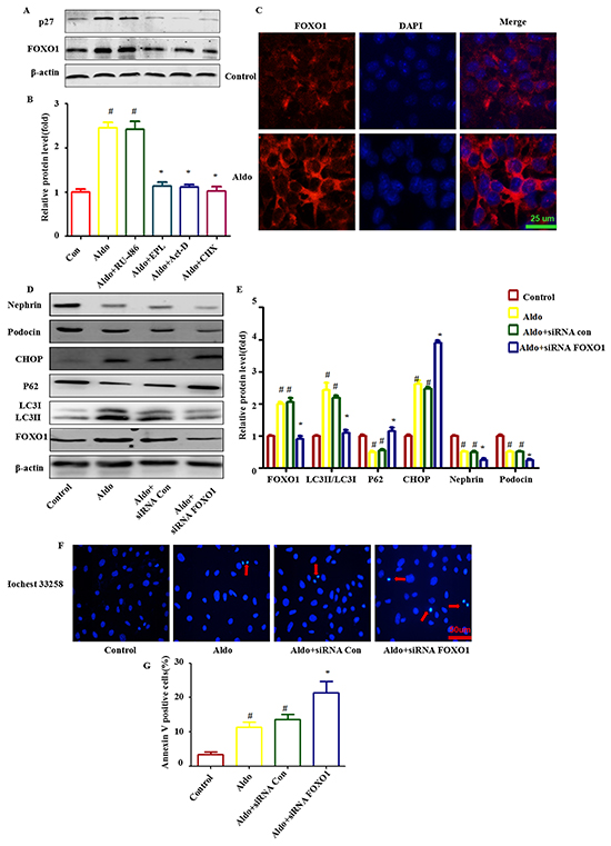 FOXO1 is involved in Aldo-induced compensatory protective autophagy.