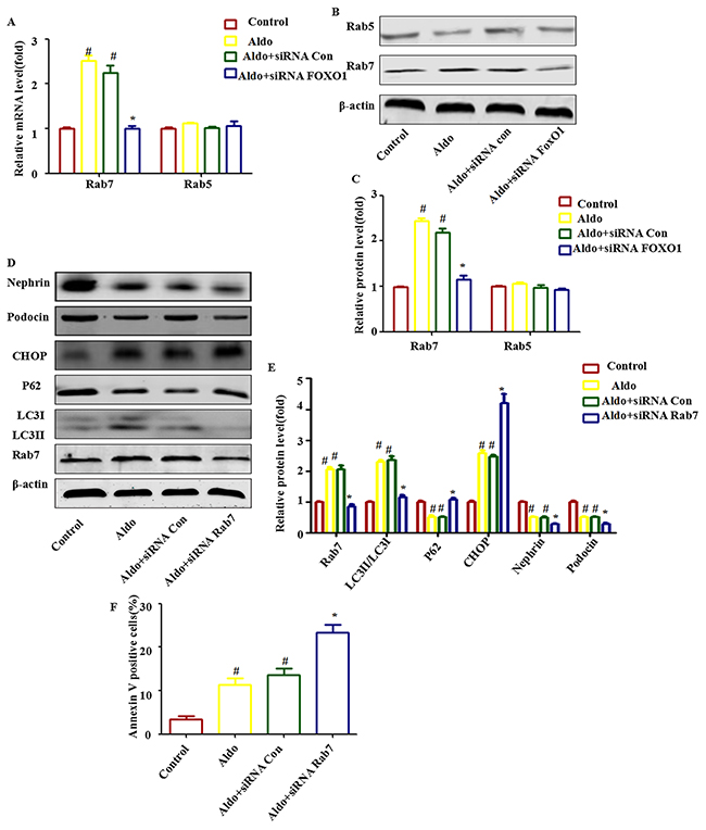 Rab7 participated in FOXO1-mediated autophagy in Aldo-induced podocytes.