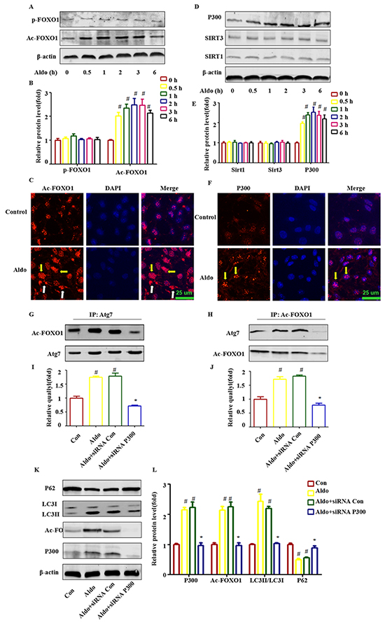 Post-translational modification of FOXO1 is also responsible for Aldo-induced autophagy in cultured podocytes.