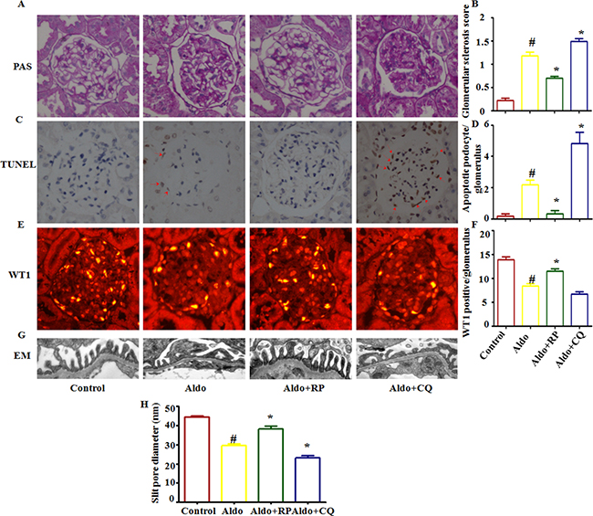 Effects of RP and CQ on podocyte injury in Aldo-induced rats.