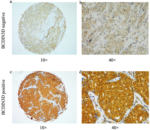 Representative image of immunohistochemical BCDIN3D staining were shown in both small pictures (×100 magnification) and large (×400 magnification).