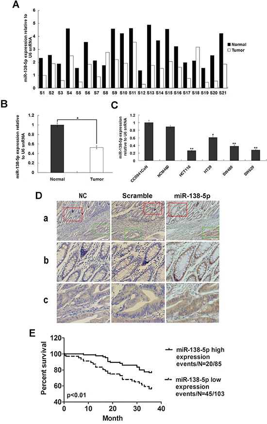 miR-138-5p is frequently downregulated in CRC.
