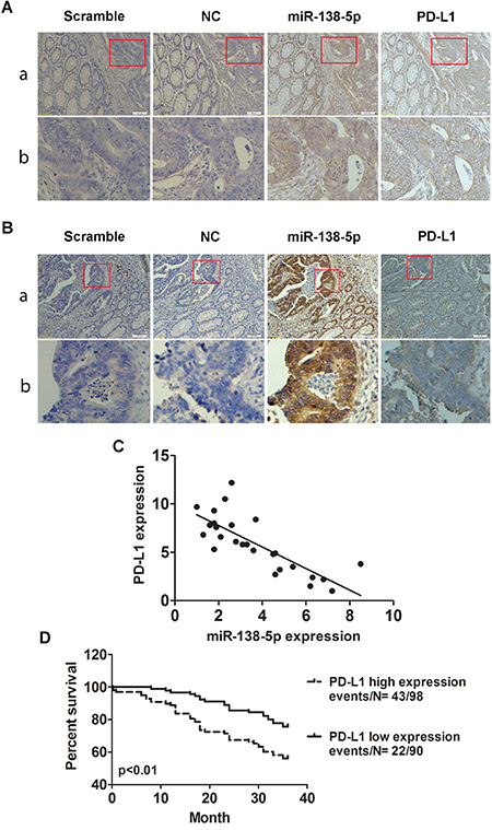 Correlation between miR-138-5p and PD-L1 expression in human CRCs.