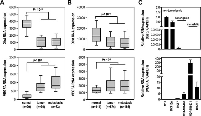 Xist expression is significantly reduced in breast cancer cell lines and breast cancer samples.