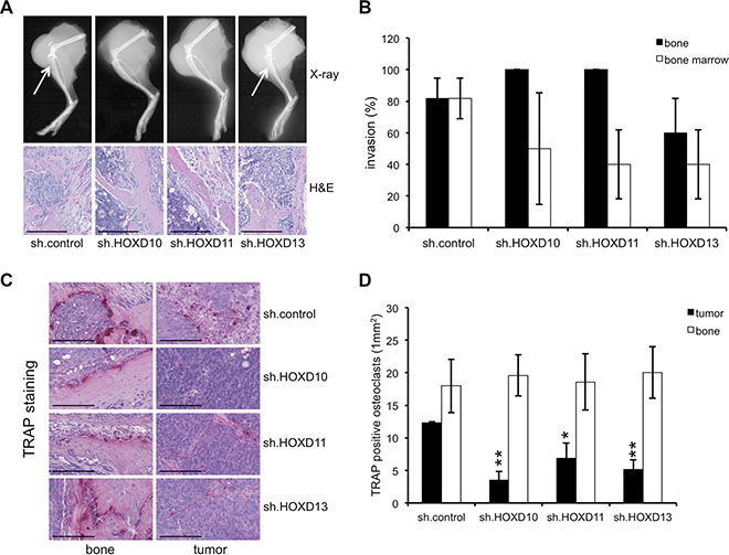 HOXD genes enhance the amount of TRAP+ osteoclasts in the tumor.