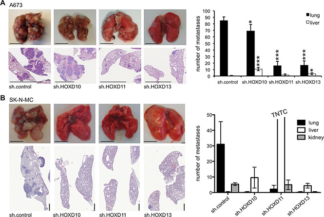 HOXD11 and HOXD13 promote lung metastasis in ES.