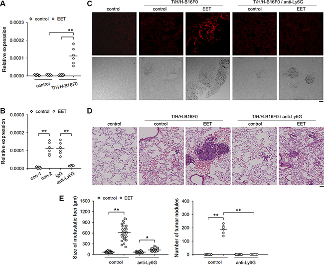 Neutrophils are the main source of MMP-9 in 14,15-EET-induced development of metastatic lesions.