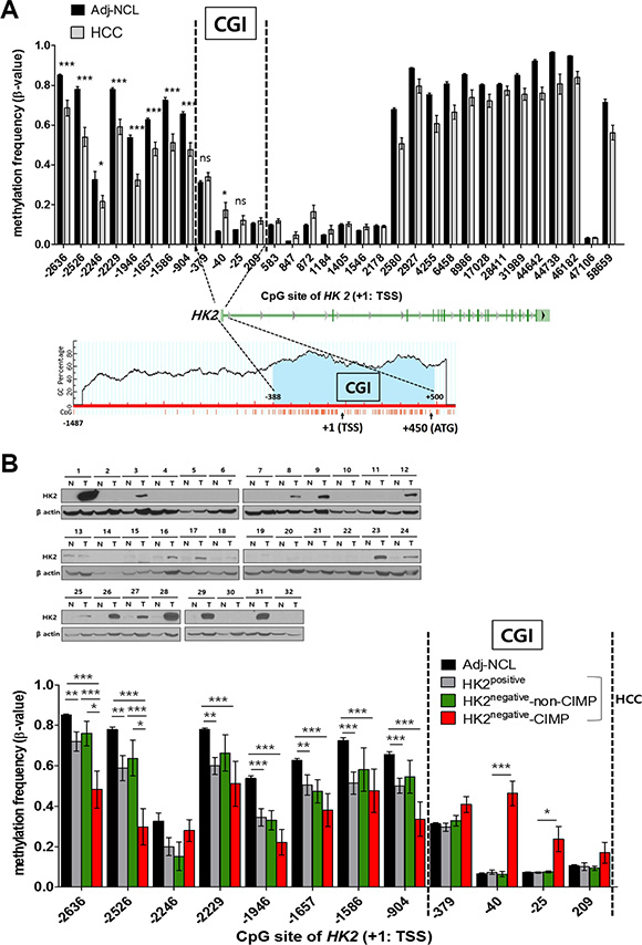 Two different alterations of CpG DNA methylation in the HK2 promoter: hypomethylation at the HK2-CGI N-shore and hypermethylation at the HK2-CGI observed only in HK2negative HK2-CIMP HCCs.