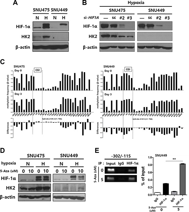 The induction of HK2 expression in HK2negative SNU449 cells by treatment with 5-Aza-CdR and hypoxia.