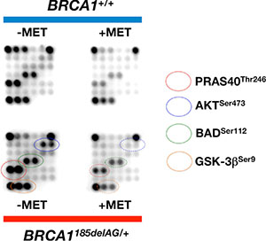 Metformin suppresses BRCA1 haploinsufficiency-driven activation of the AKT/mTOR pathway.