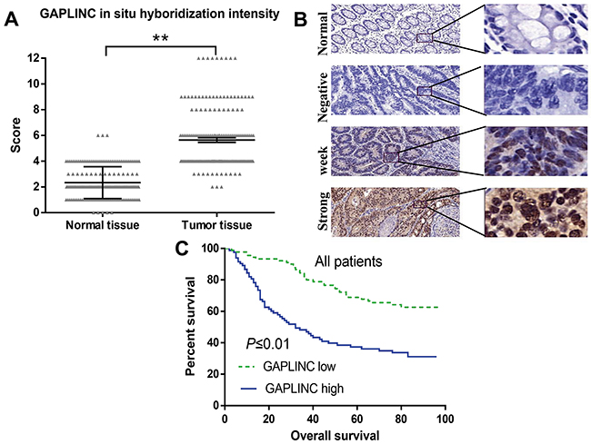 GAPLINC expression correlated with worse prognosis for patients with CRC.