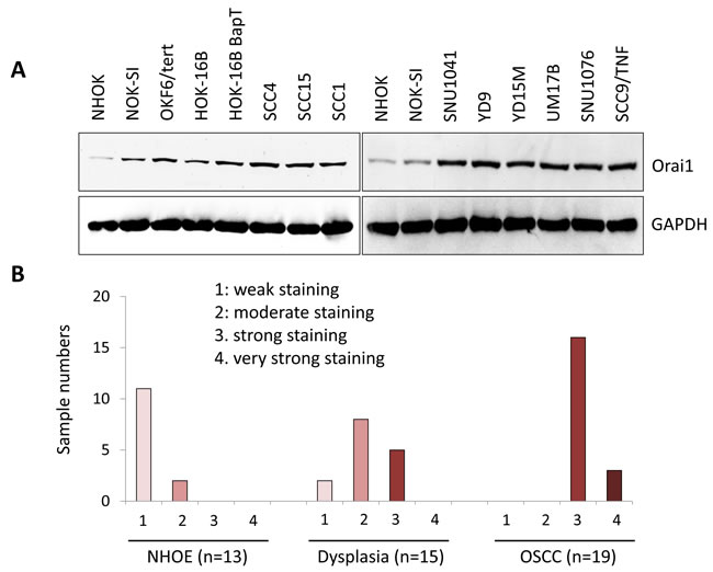 A stepwise increase of Orai1 in oral/oropharyngeal carcinogenesis.