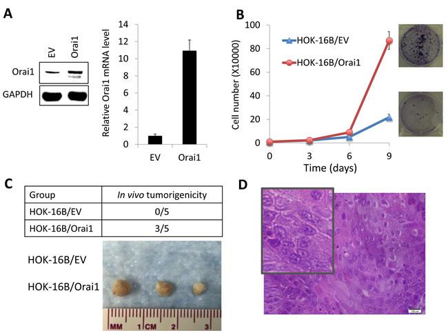 Ectopic Orai1 expression endows non-tumorigenic immortalized oral epithelial cells with tumorigenic potential