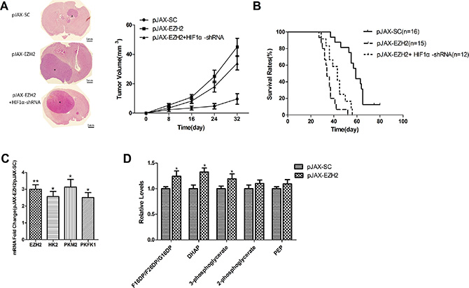 EZH2 is associated with to HIF1α-related metabolic reprogramming in intracranial glioma xenografts.