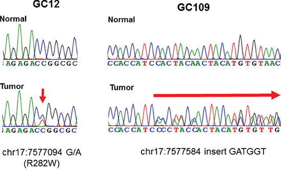 Representative sequencing chromatograms of two cases with TP53 mutations.