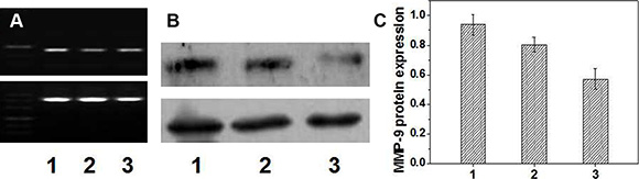 PCR (A) and western-blot (B and C) results (n = 5).