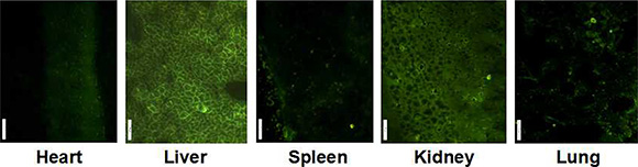 GFP expression in main organ of mice after 24 h treatment with FA-CD-PLLD/DOC/MMP-9.
