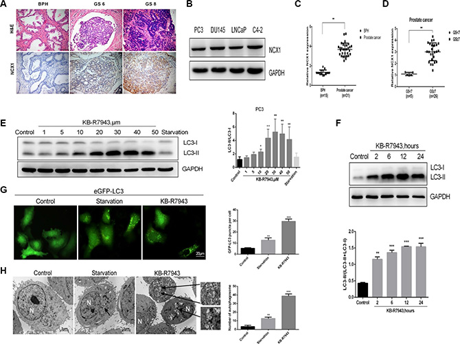 NCX1 expression was increased in the prostate cancer tissues and KB-R7943 induced autophagosome accumulation in prostate cancer cells.
