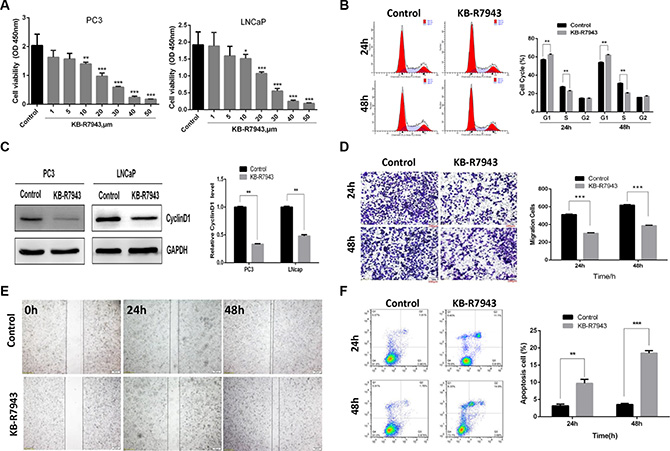KB-R7943 inhibited prostate cancer cell growth, cell cycle progression, and migration and induced apoptosis.