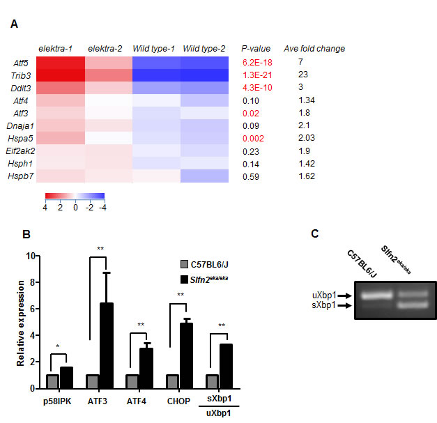 High expression of ER stress related genes in