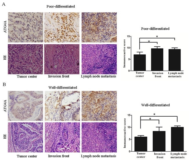 ATG4A is overexpressed in the invasion front and lymph node metastatic lesions of gastric cancers.