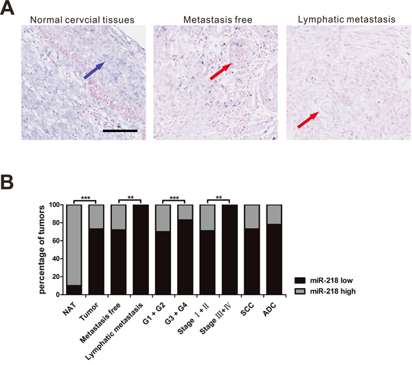 MiR-218 expression is lower in cervical cancer tissues.
