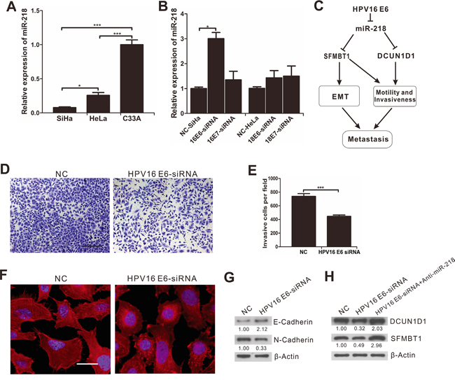 The inhibition of miR-218 on EMT, migration and invasion of cervical cancer cells downregulated by HPV16 E6.