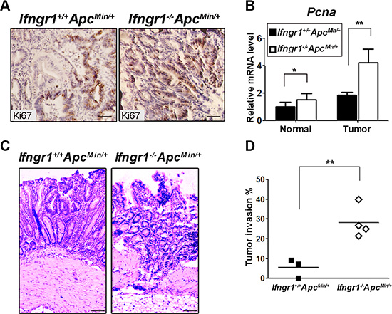 Increased malignancy in tumors of Ifngr1−/−ApcMin/+ mice.