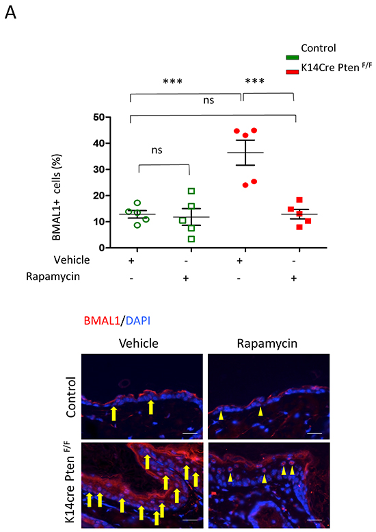 Inhibition of mTOR signaling with Rapamycin rescues PTEN-driven accumulation of BMAL1.