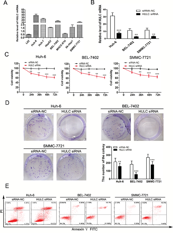 Effect of HULC on HCC cell growth in vitro.