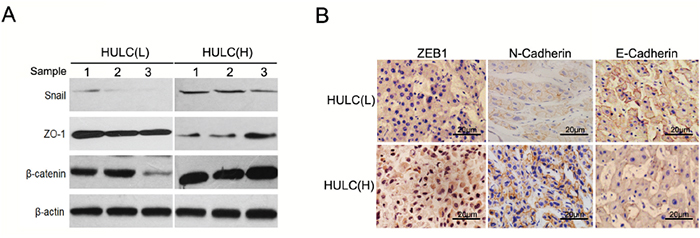 HULC was associated with EMT features of HCC.