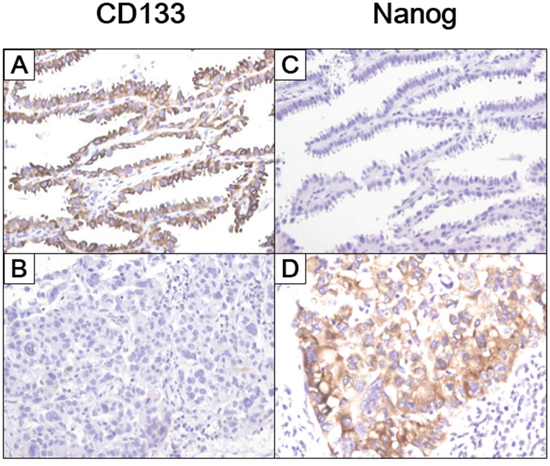 CSC marker expression in histologic subtypes of lung adenocarcinoma.