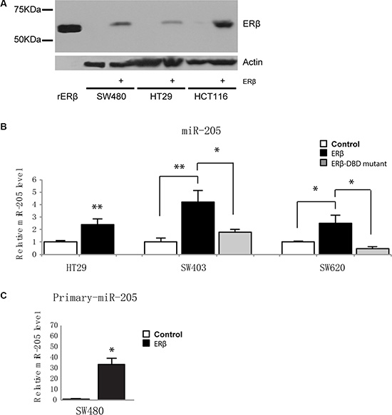 ERβ upregulates miR-205 expression in colon cancer cells.