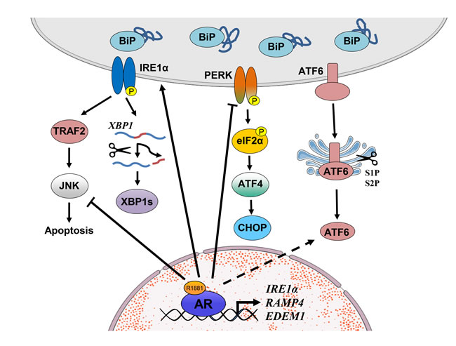 Schematic representation of UPR signaling in prostate cancer.