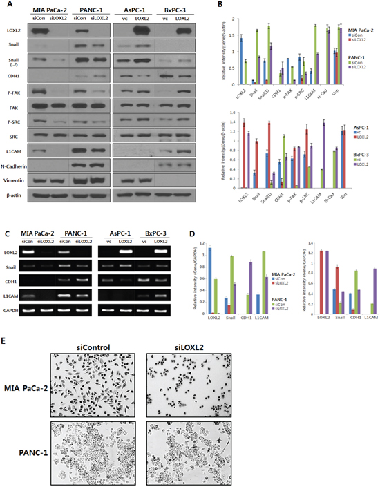 Analysis of LOXL2 expression in pancreatic cancer cell lines with LOXL2-silencing and LOXL2-overexpression.