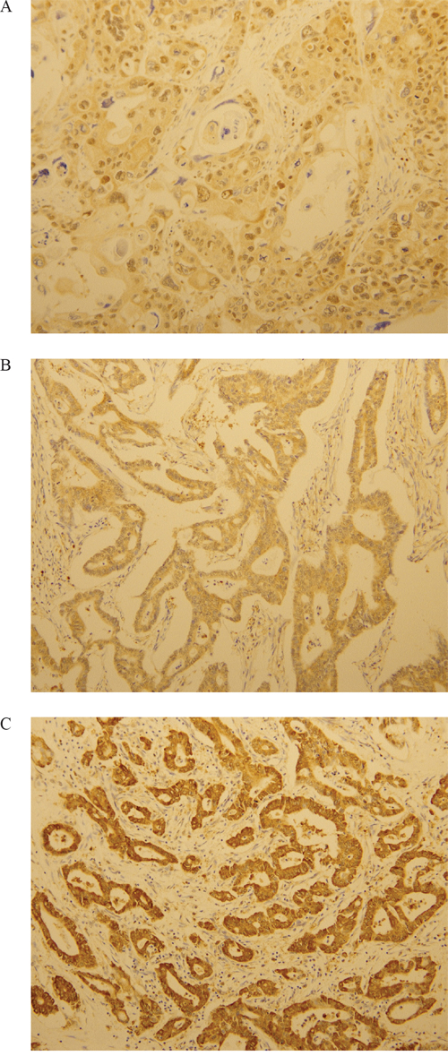 Immunohistochemical analysis of LOXL2. LOXL2 expression was evaluated at a high-power field (x200 magnification).