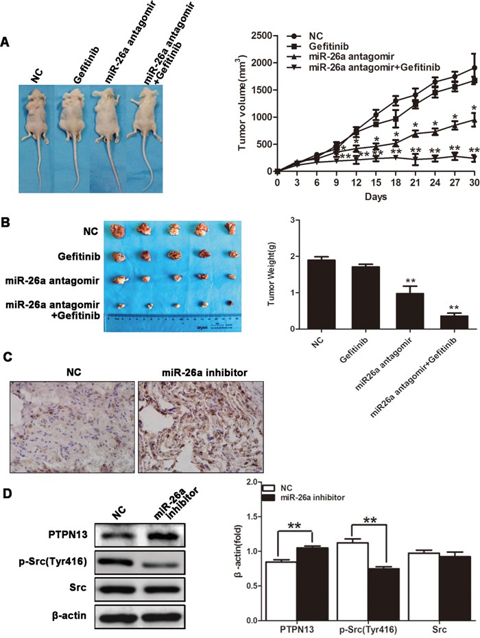 miR-26a confers Gefitinib resistance of xenograft NSCLCs.